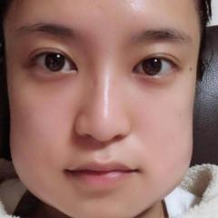 小島瑠璃子、抜歯直後の顔面変形にネット騒然「食パンマンみたい」